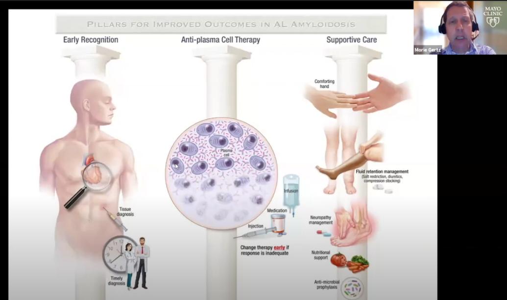 Webinar Presentation By Morie Gertz On AL Amyloidosis Overview